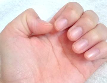 施術時には必ずチェック!ジェルネイルの長さ出しができない爪とは?
